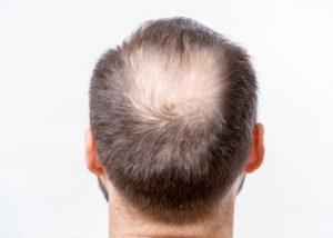 Quel est l'impact de la créatine sur les cheveux ?
